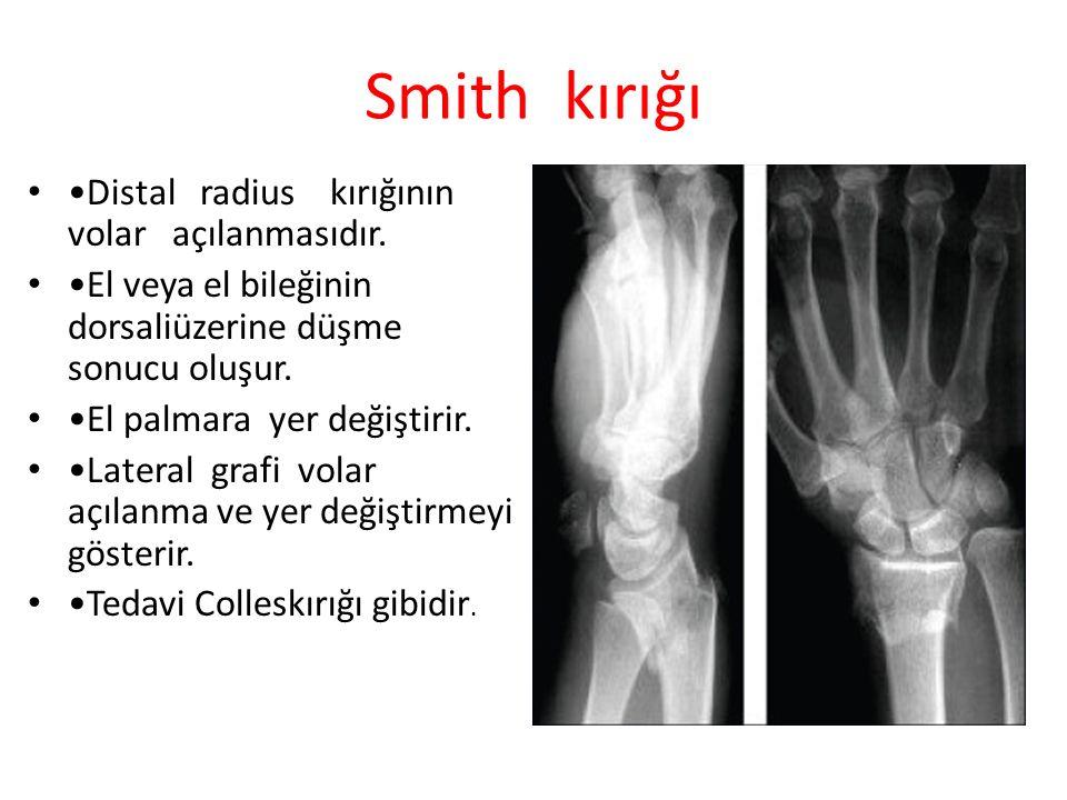 Smith kırığı •Distal radius kırığının volar açılanmasıdır.