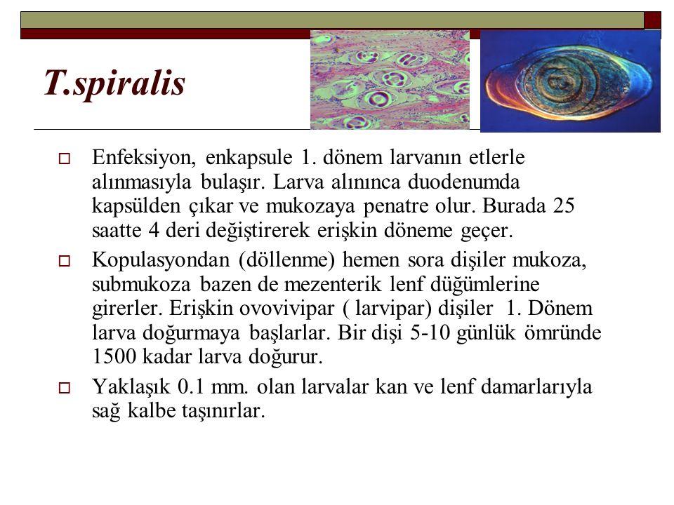 T.spiralis