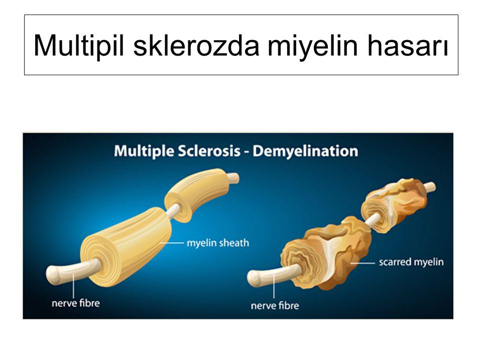 Multipil sklerozda miyelin hasarı