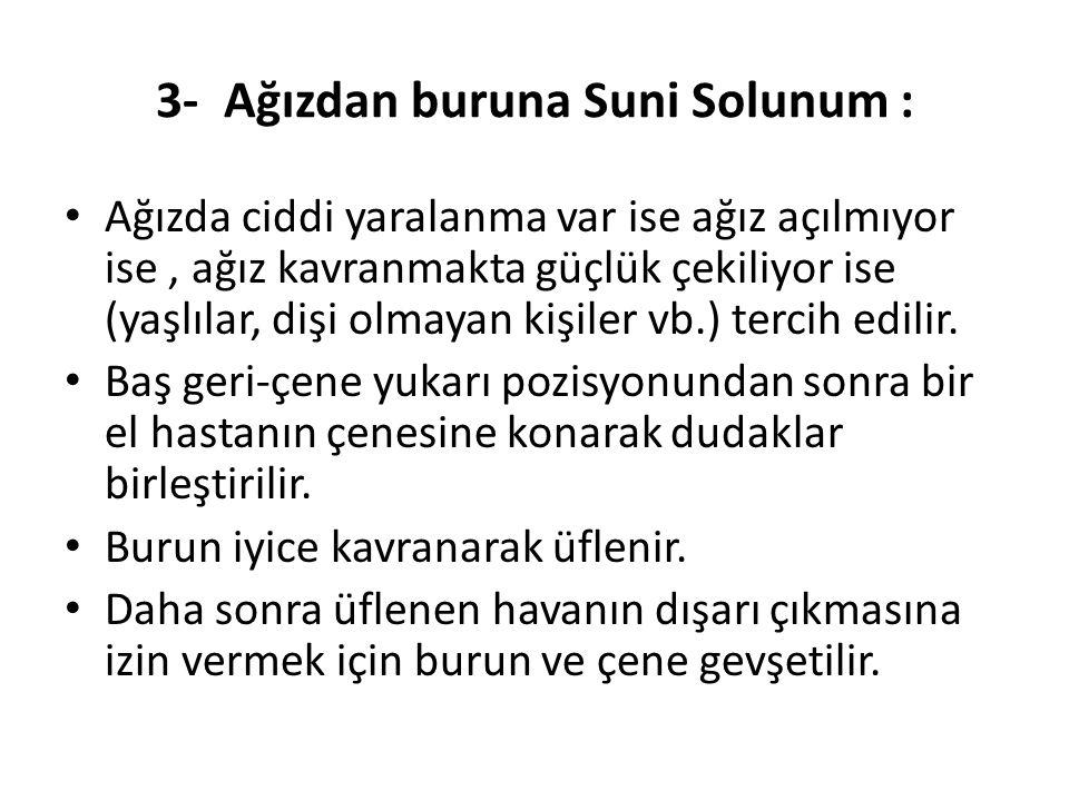 3- Ağızdan buruna Suni Solunum :