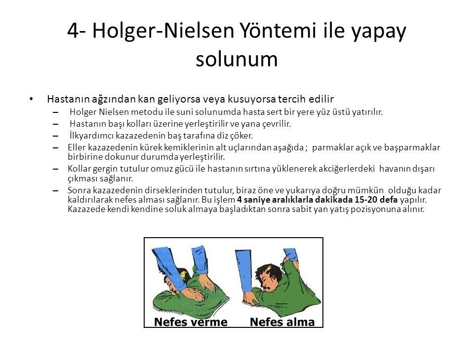 4- Holger-Nielsen Yöntemi ile yapay solunum