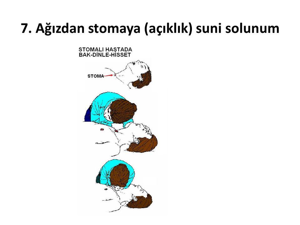 7. Ağızdan stomaya (açıklık) suni solunum