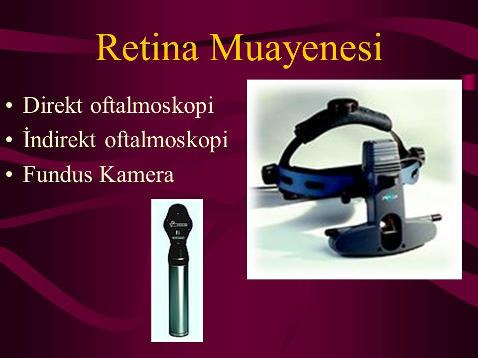 Retina Muayenesi Direkt oftalmoskopi İndirekt oftalmoskopi
