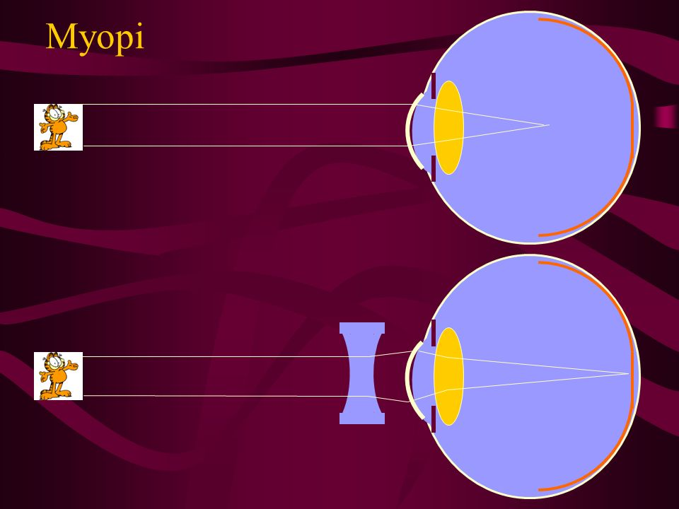 Myopi