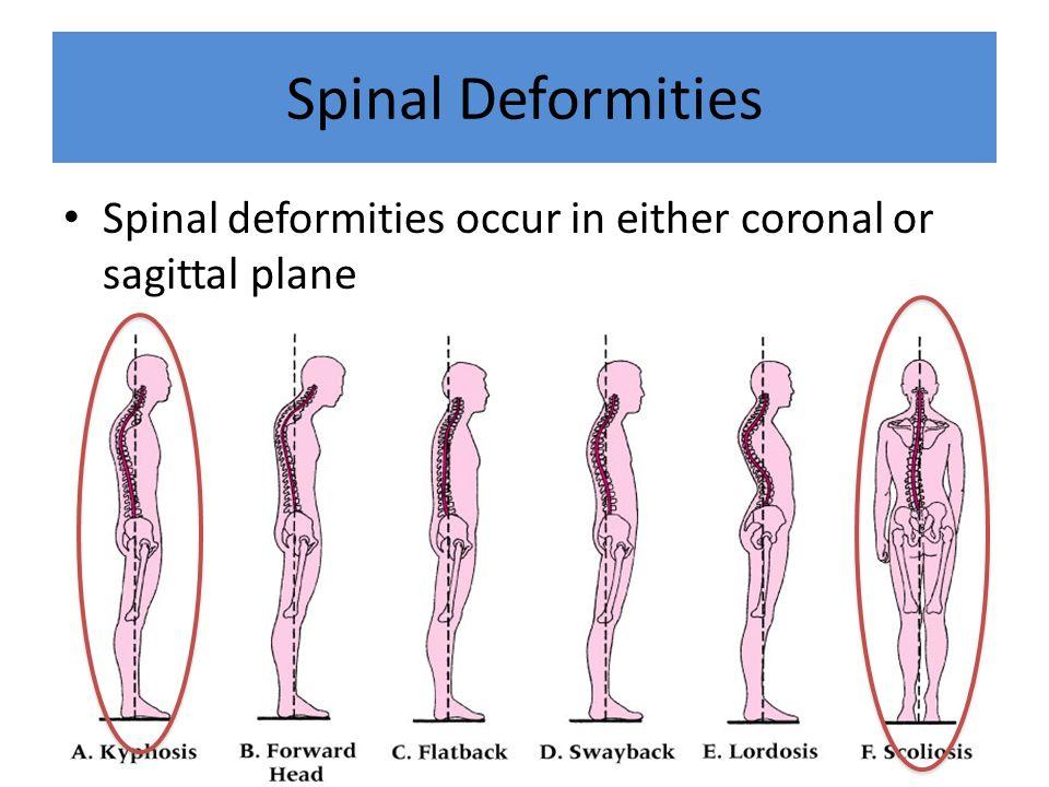 Spinal Deformities Spinal deformities occur in either coronal or sagittal plane.