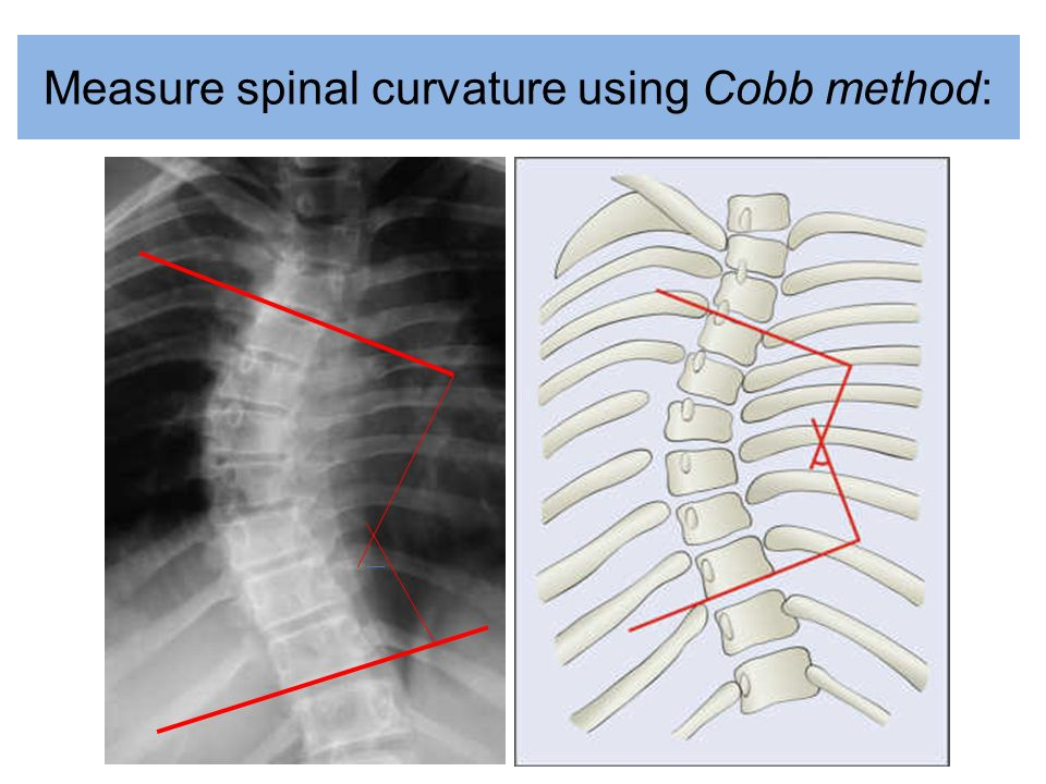 Measure spinal curvature using Cobb method: