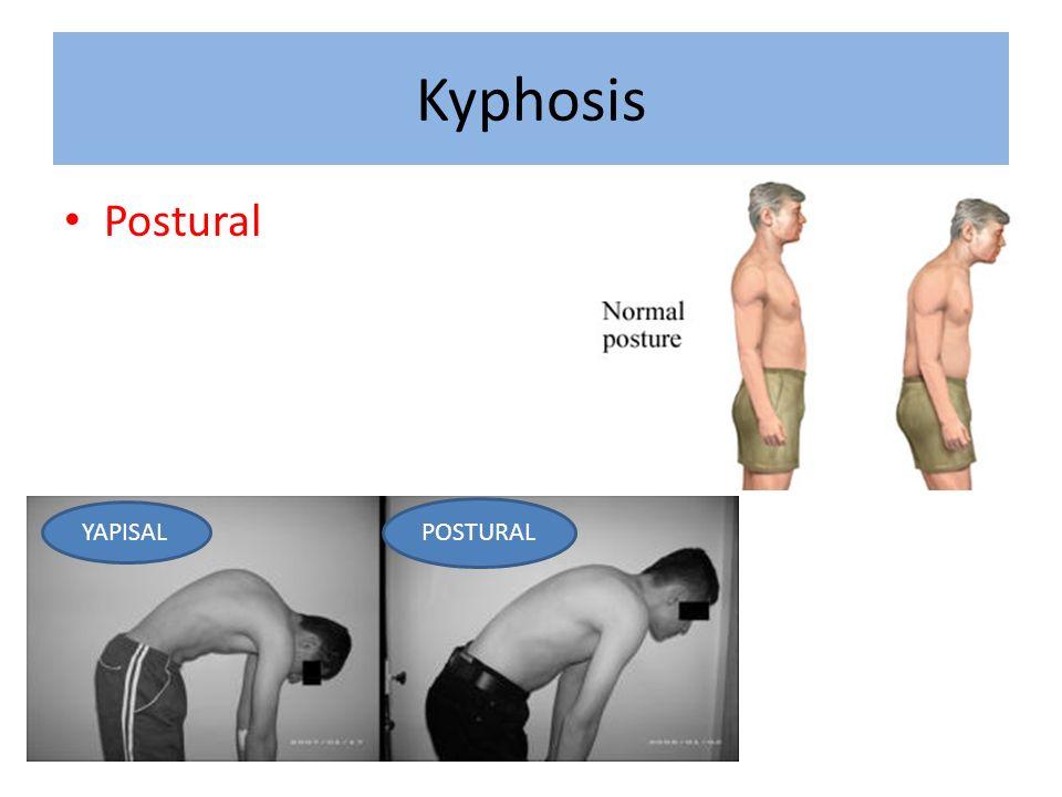Kyphosis Postural YAPISAL POSTURAL