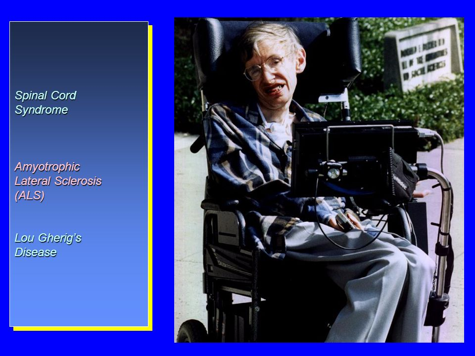 Spinal Cord Syndrome Amyotrophic Lateral Sclerosis (ALS) Lou Gherig's Disease