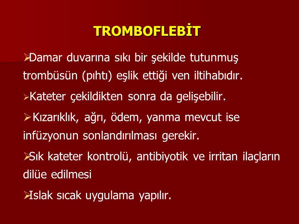 TROMBOFLEBİT Damar duvarına sıkı bir şekilde tutunmuş trombüsün (pıhtı) eşlik ettiği ven iltihabıdır.