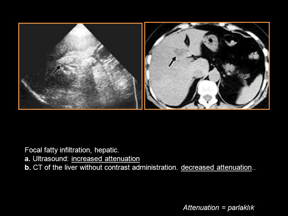 Focal fatty infiltration, hepatic. a. Ultrasound: increased attenuation b. CT of the liver without contrast administration. decreased attenuation..