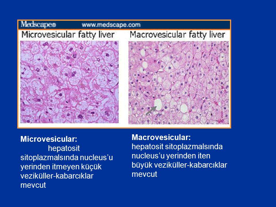 Macrovesicular: hepatosit sitoplazmalsında nucleus'u yerinden iten büyük veziküller-kabarcıklar mevcut