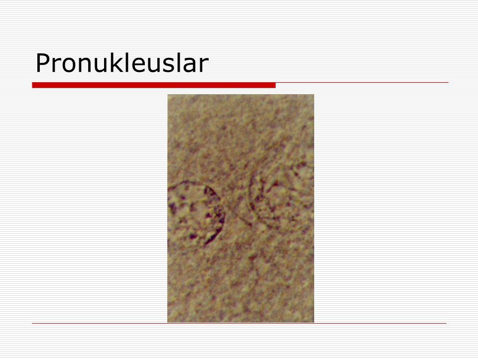 Pronukleuslar