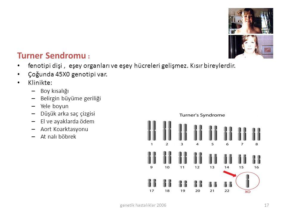 Turner Sendromu : fenotipi dişi , eşey organları ve eşey hücreleri gelişmez. Kısır bireylerdir. Çoğunda 45X0 genotipi var.