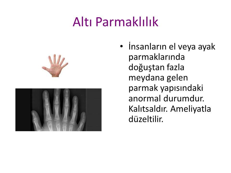 Altı Parmaklılık