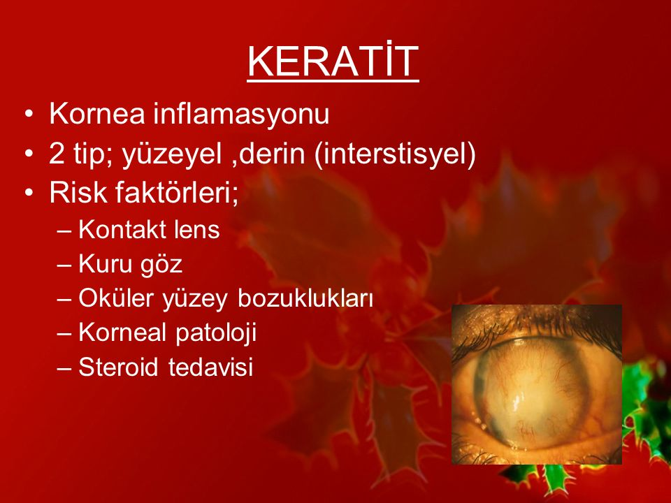 KERATİT Kornea inflamasyonu 2 tip; yüzeyel ,derin (interstisyel)