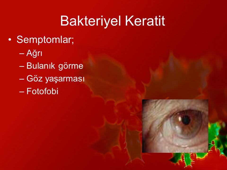 Bakteriyel Keratit Semptomlar; Ağrı Bulanık görme Göz yaşarması