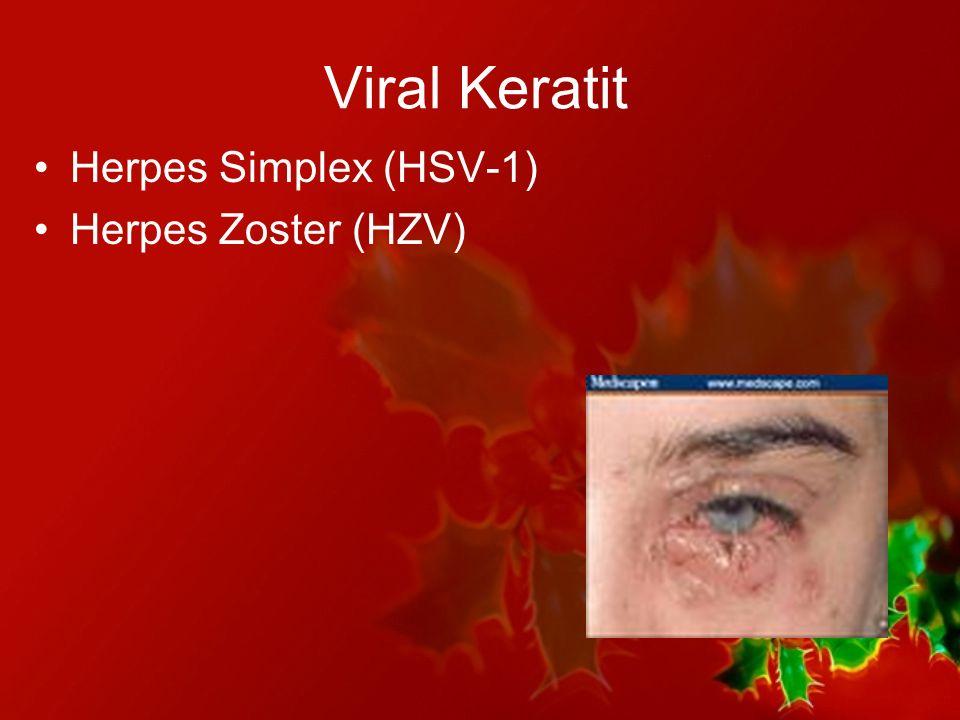 Viral Keratit Herpes Simplex (HSV-1) Herpes Zoster (HZV)