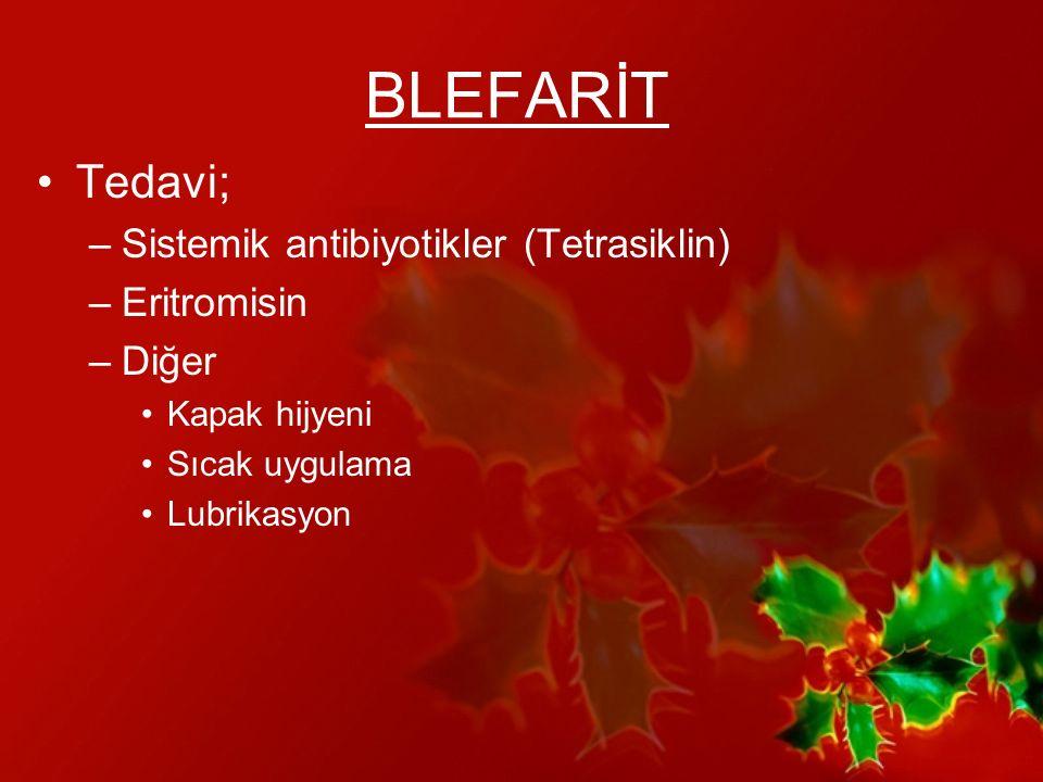BLEFARİT Tedavi; Sistemik antibiyotikler (Tetrasiklin) Eritromisin