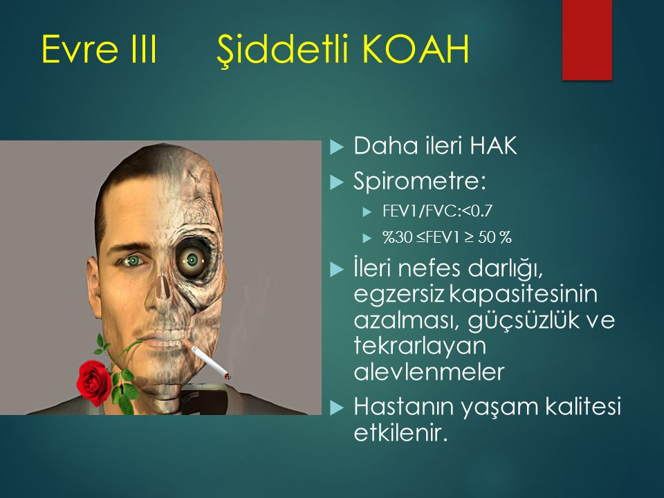 Evre III Şiddetli KOAH Daha ileri HAK Spirometre: