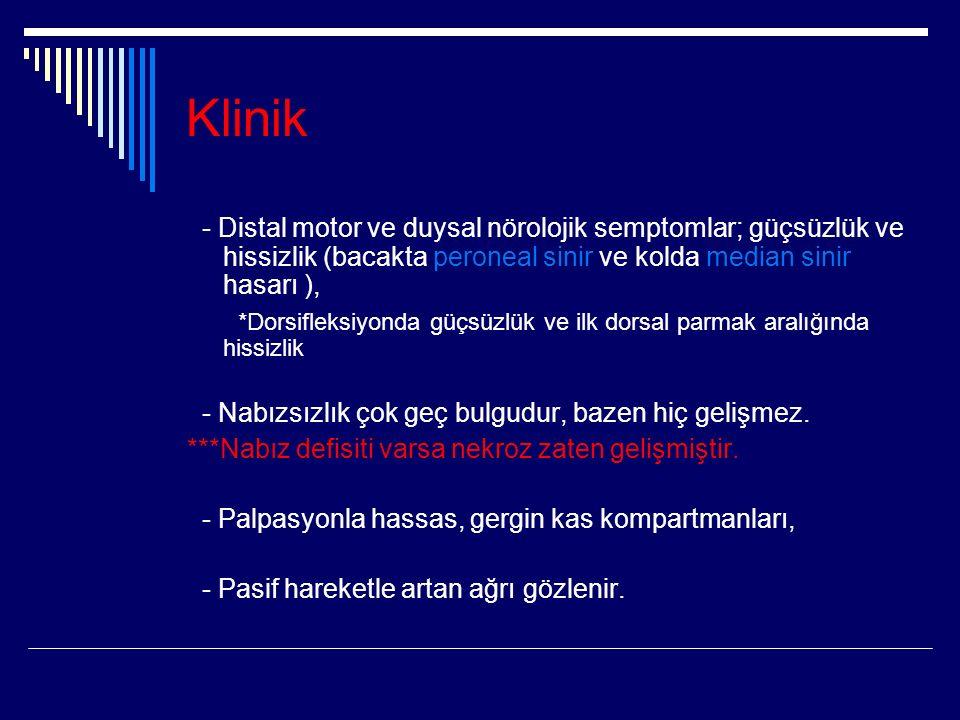 Klinik - Distal motor ve duysal nörolojik semptomlar; güçsüzlük ve hissizlik (bacakta peroneal sinir ve kolda median sinir hasarı ),