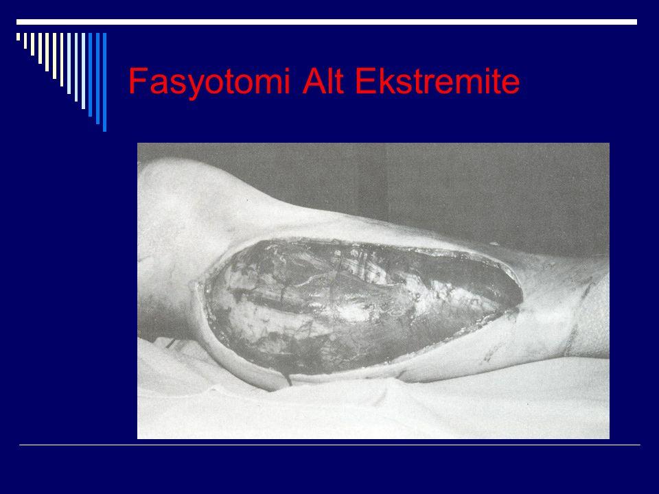 Fasyotomi Alt Ekstremite