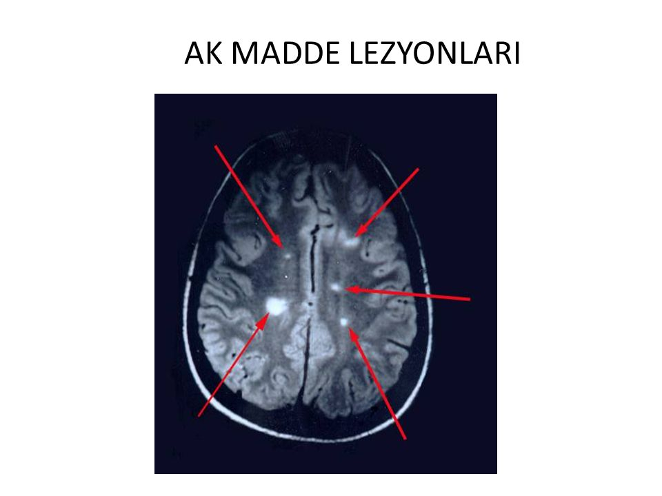 AK MADDE LEZYONLARI