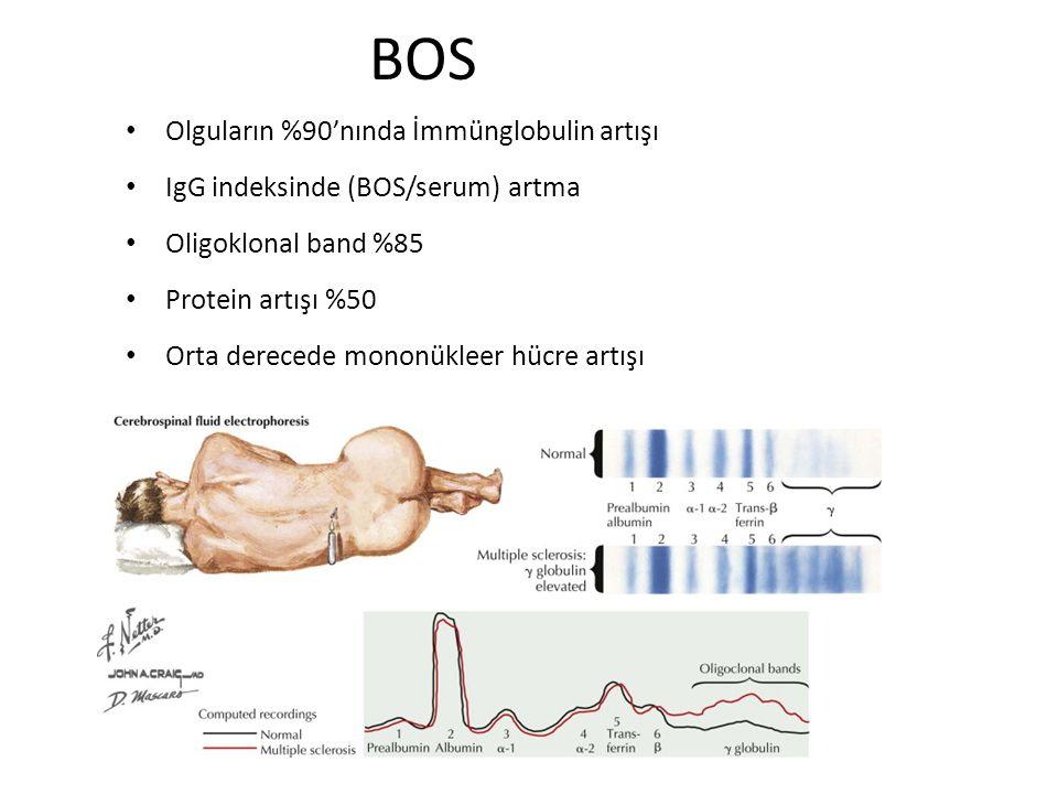 BOS Olguların %90'nında İmmünglobulin artışı