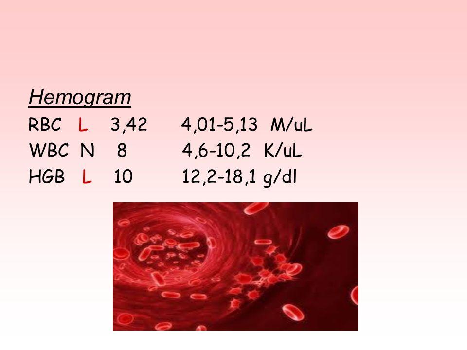 Hemogram RBC L 3,42 4,01-5,13 M/uL WBC N 8 4,6-10,2 K/uL