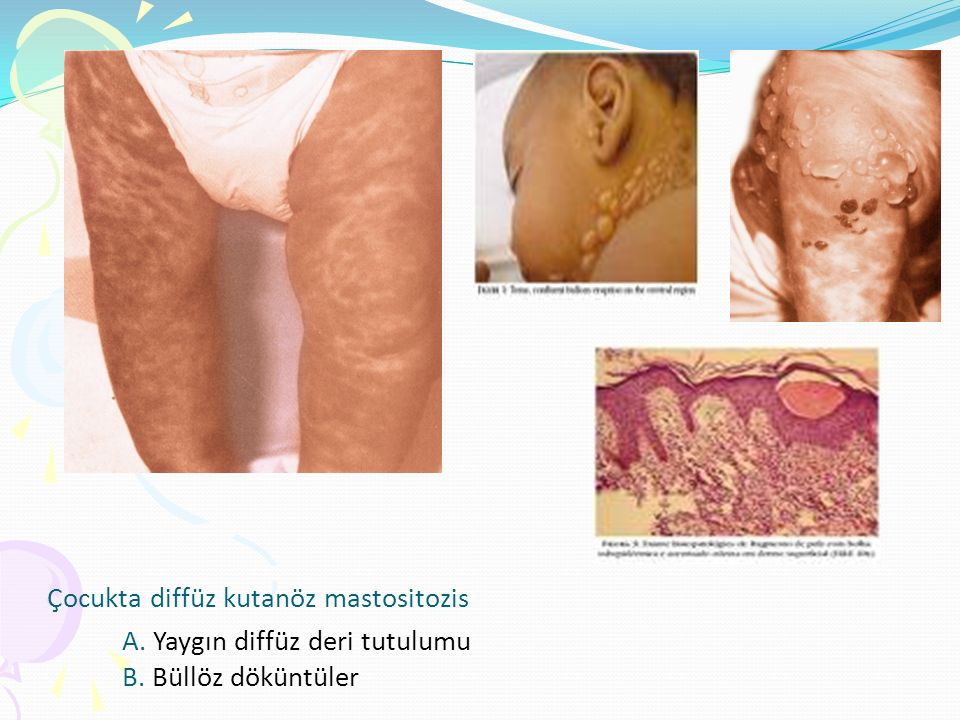 Çocukta diffüz kutanöz mastositozis A. Yaygın diffüz deri tutulumu B