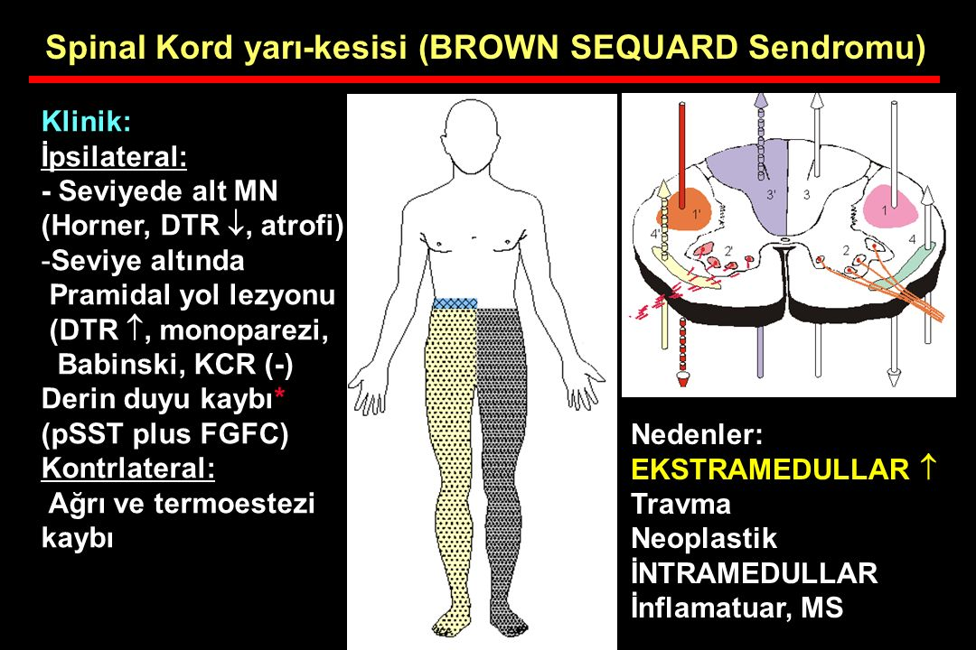Spinal Kord yarı-kesisi (BROWN SEQUARD Sendromu)
