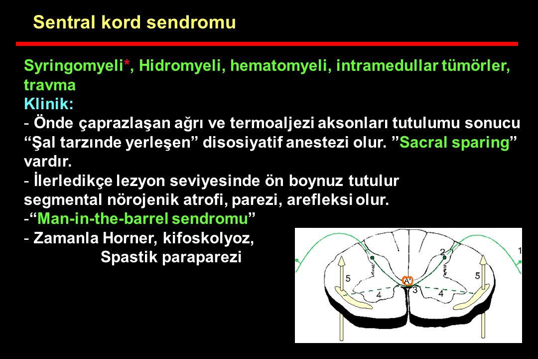 Sentral kord sendromu Syringomyeli*, Hidromyeli, hematomyeli, intramedullar tümörler, travma. Klinik:
