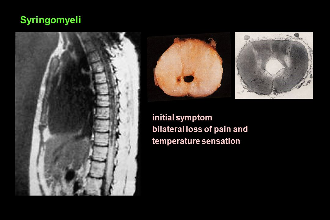 Syringomyeli initial symptom bilateral loss of pain and