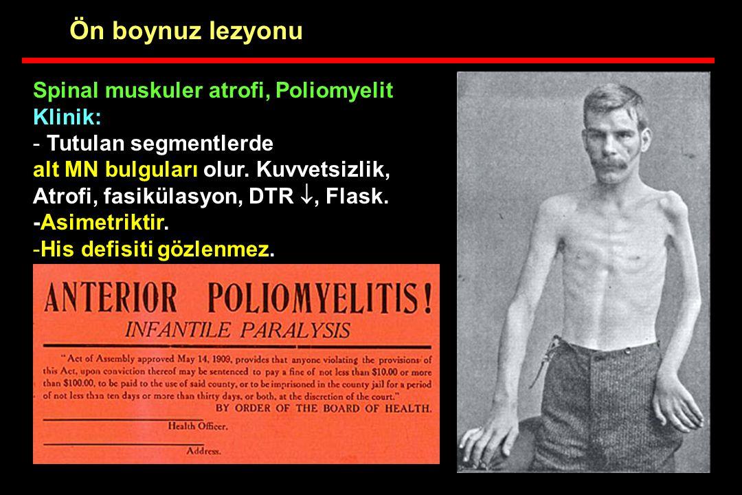 Ön boynuz lezyonu Spinal muskuler atrofi, Poliomyelit Klinik: