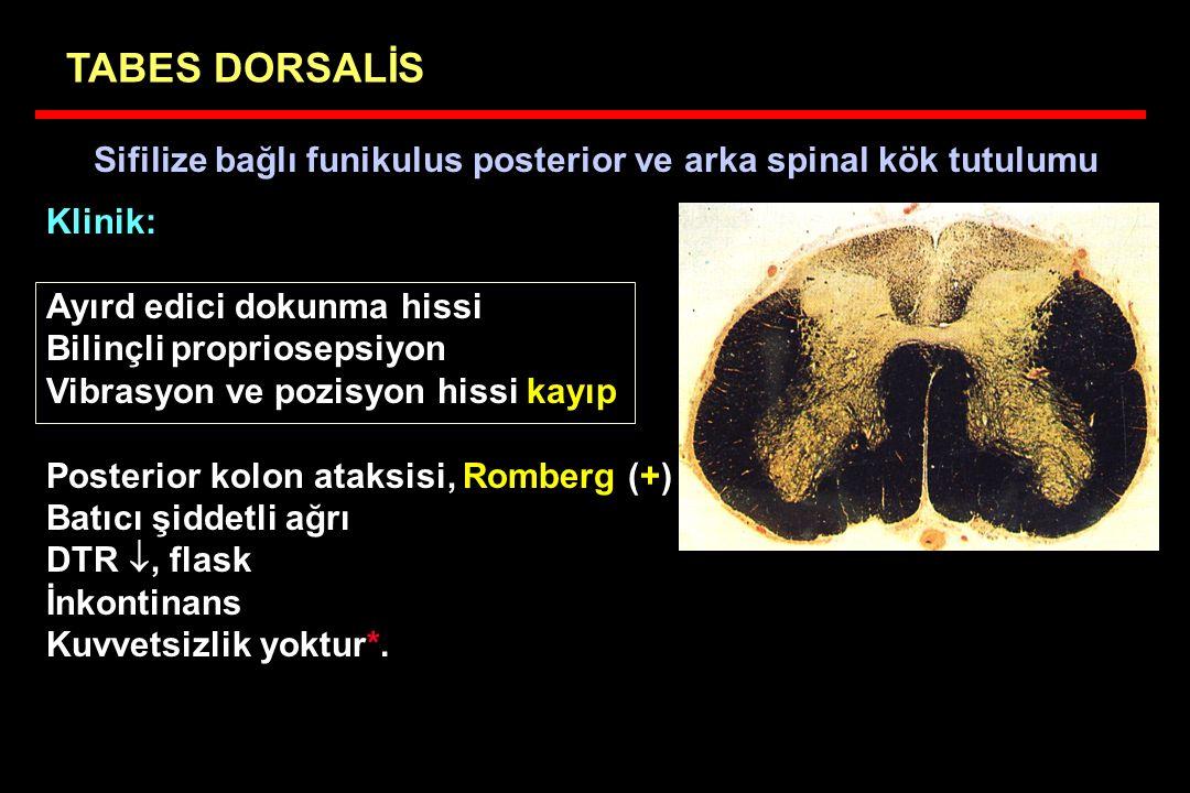 TABES DORSALİS Sifilize bağlı funikulus posterior ve arka spinal kök tutulumu. Klinik: Ayırd edici dokunma hissi.
