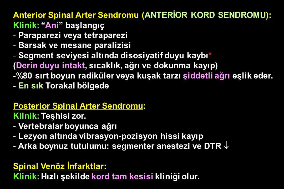 Anterior Spinal Arter Sendromu (ANTERİOR KORD SENDROMU):