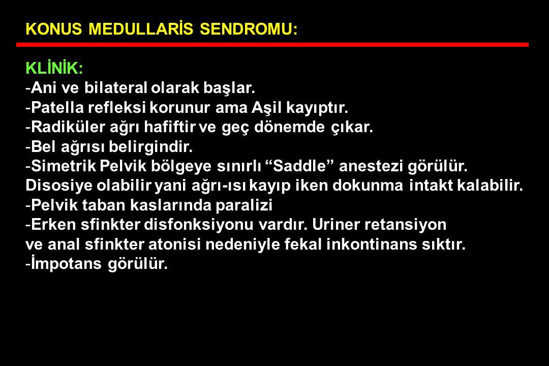 KONUS MEDULLARİS SENDROMU: