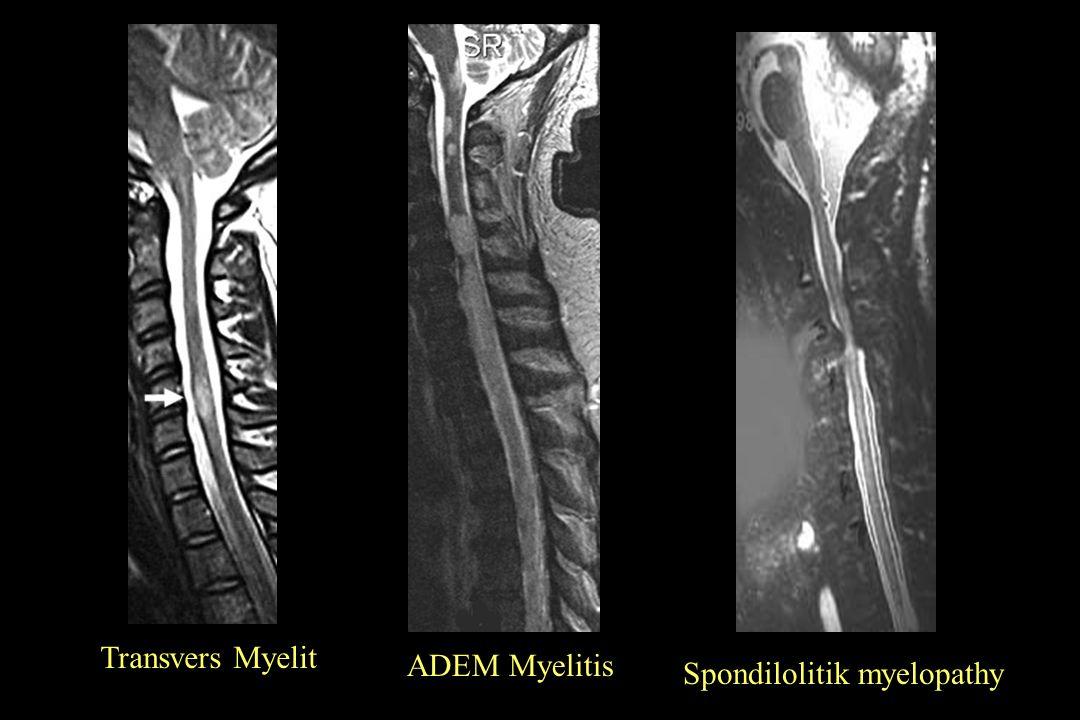 Spondilolitik myelopathy