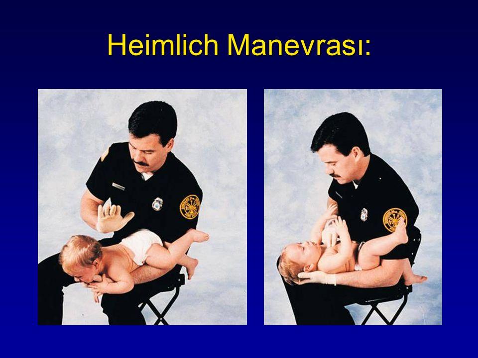 Heimlich Manevrası: