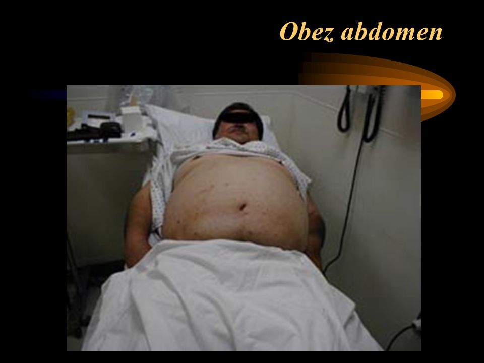 Obez abdomen
