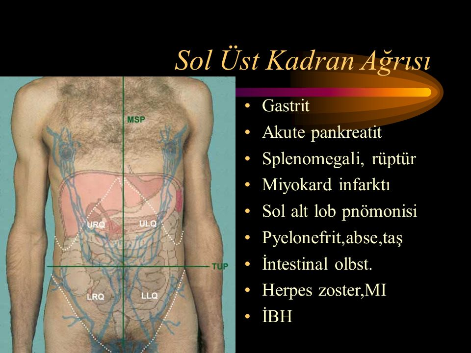 Sol Üst Kadran Ağrısı Gastrit Akute pankreatit Splenomegali, rüptür