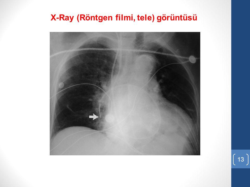 X-Ray (Röntgen filmi, tele) görüntüsü