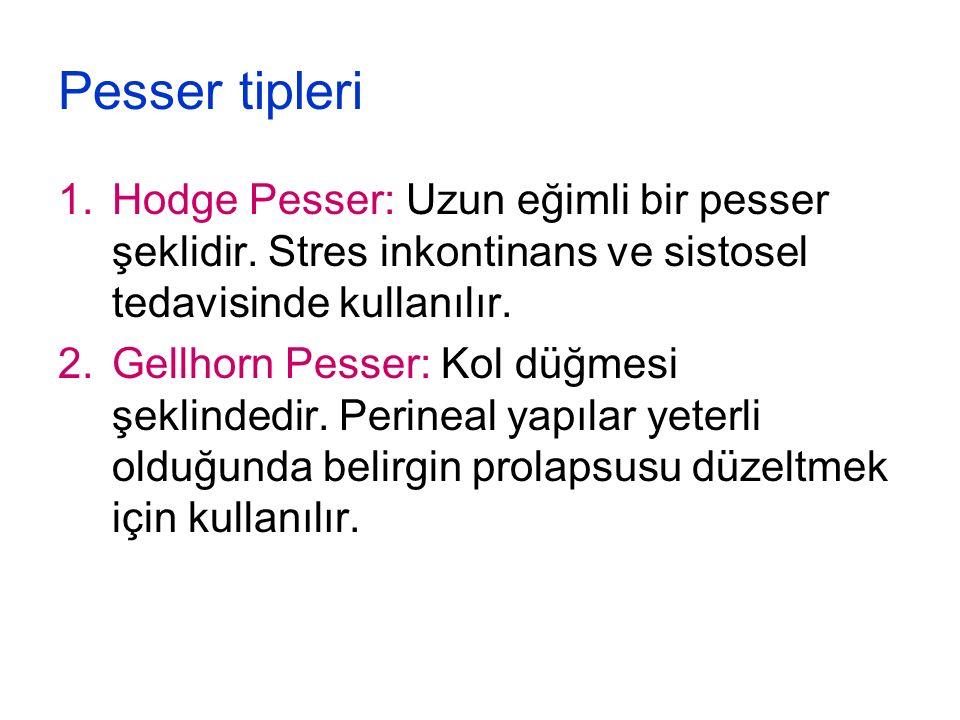 Pesser tipleri Hodge Pesser: Uzun eğimli bir pesser şeklidir. Stres inkontinans ve sistosel tedavisinde kullanılır.