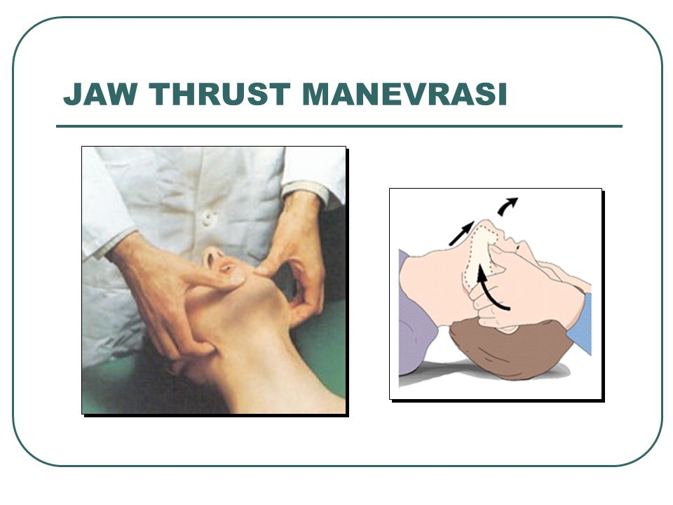 JAW THRUST MANEVRASI