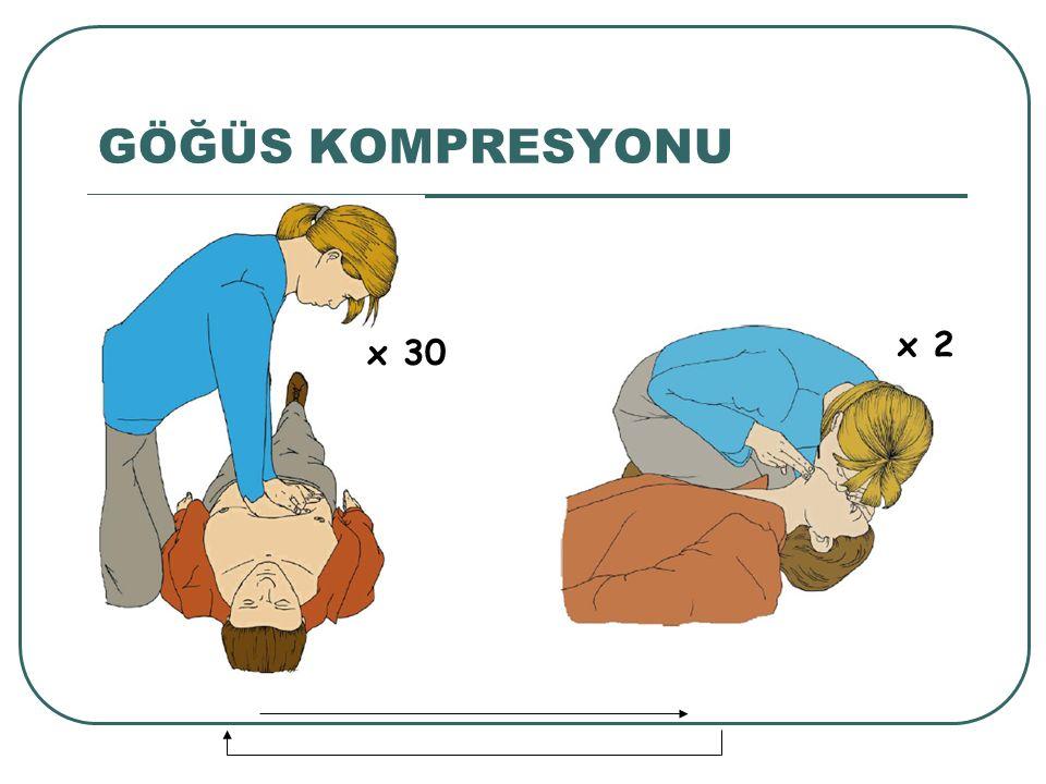 GÖĞÜS KOMPRESYONU x 2 x 30 Ardından 30 kompresyon ve 2 solunum siklüsünü sürdürün.