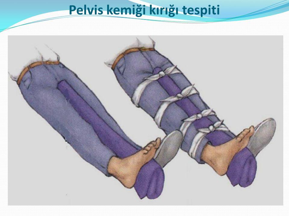 Pelvis kemiği kırığı tespiti