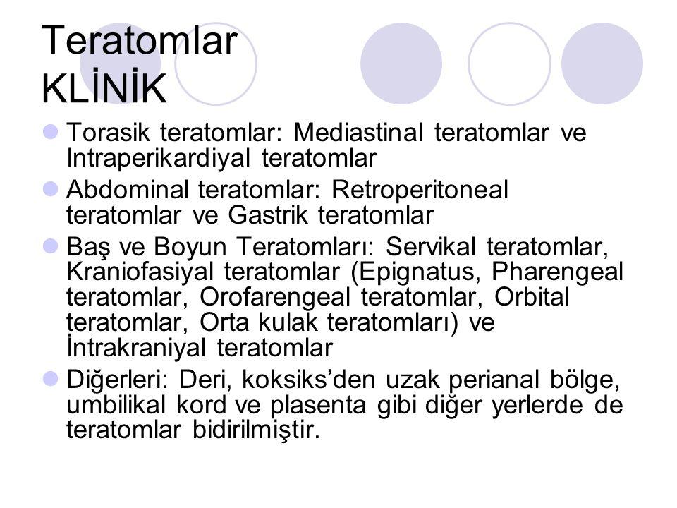 Teratomlar KLİNİK Torasik teratomlar: Mediastinal teratomlar ve Intraperikardiyal teratomlar.