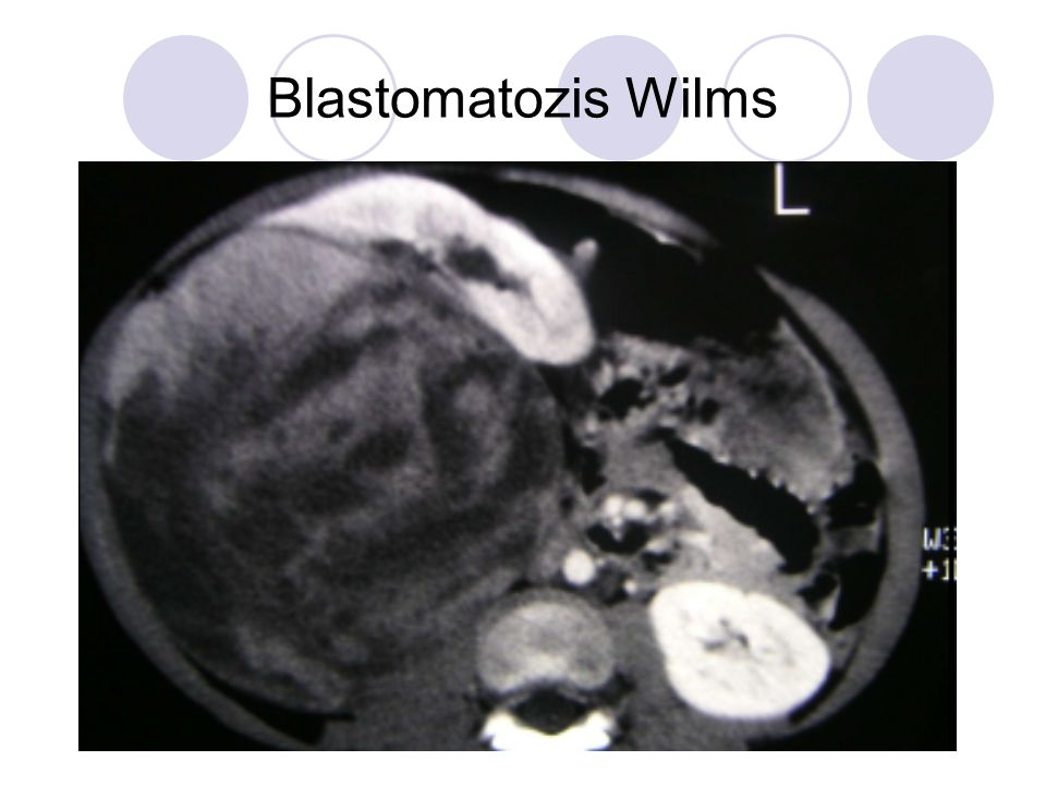 Blastomatozis Wilms