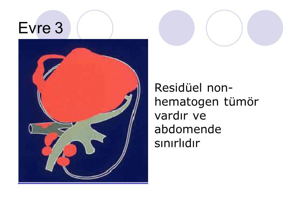 Evre 3 Residüel non-hematogen tümör vardır ve abdomende sınırlıdır
