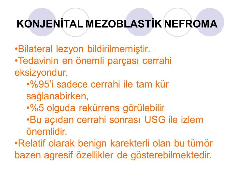 KONJENİTAL MEZOBLASTİK NEFROMA