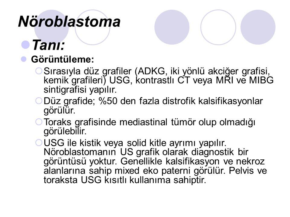 Nöroblastoma Tanı: Görüntüleme: